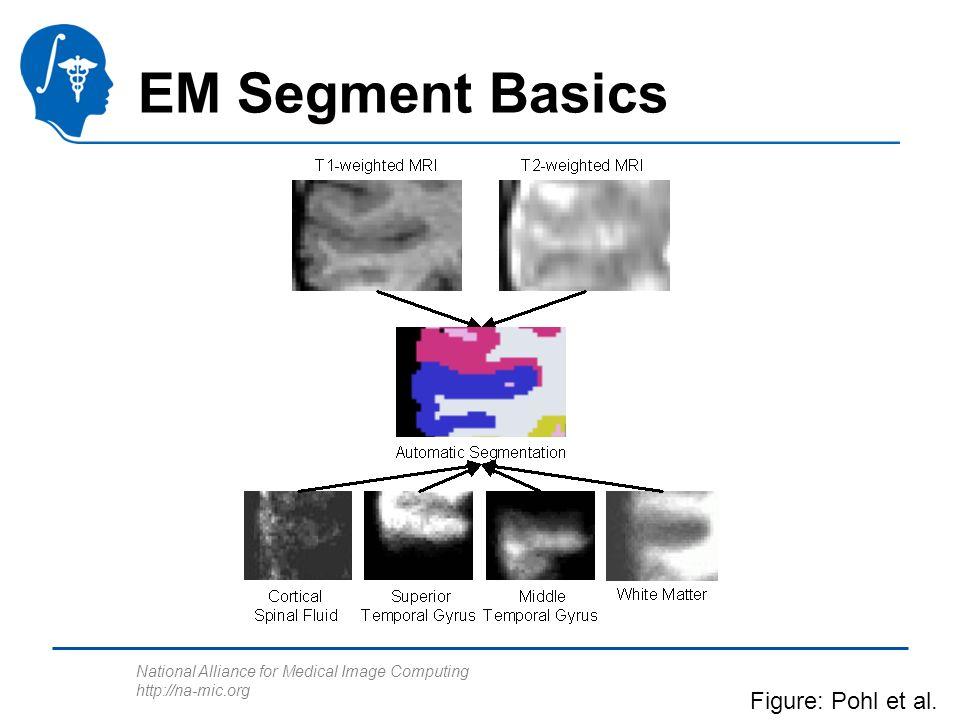 National Alliance for Medical Image Computing http://na-mic.org EM Segment Basics Figure: Pohl et al.