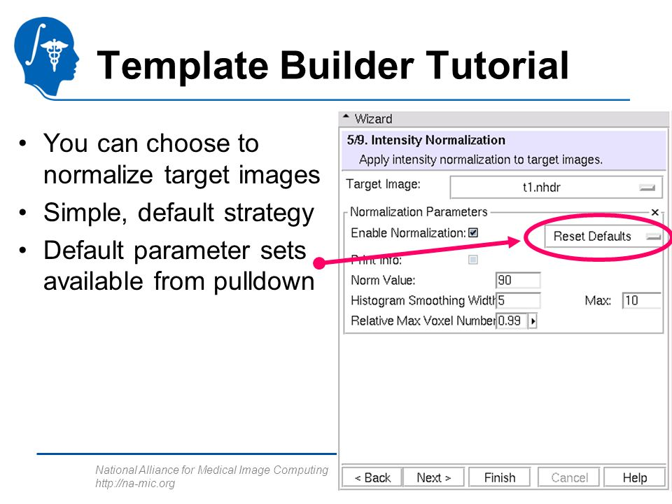 National Alliance for Medical Image Computing http://na-mic.org Template Builder Tutorial You can choose to normalize target images Simple, default st