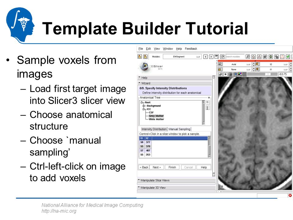National Alliance for Medical Image Computing http://na-mic.org Template Builder Tutorial Sample voxels from images –Load first target image into Slic
