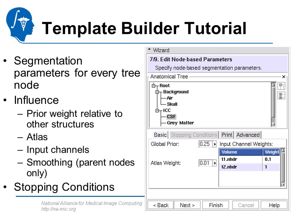 National Alliance for Medical Image Computing http://na-mic.org Template Builder Tutorial Segmentation parameters for every tree node Influence –Prior