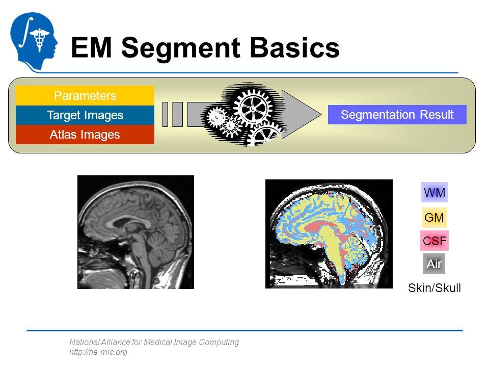 National Alliance for Medical Image Computing http://na-mic.org Atlas Images Target Images Parameters Segmentation Result EM Segment Basics GM WM CSF Air Skin/Skull