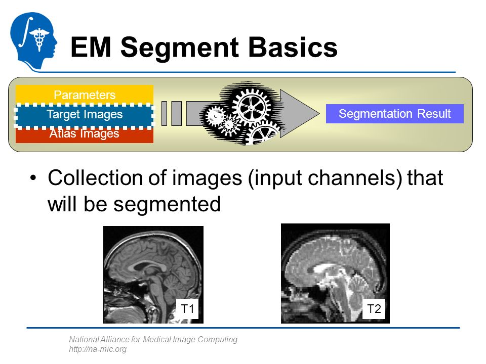National Alliance for Medical Image Computing http://na-mic.org Atlas Images Parameters Segmentation Result EM Segment Basics Collection of images (in