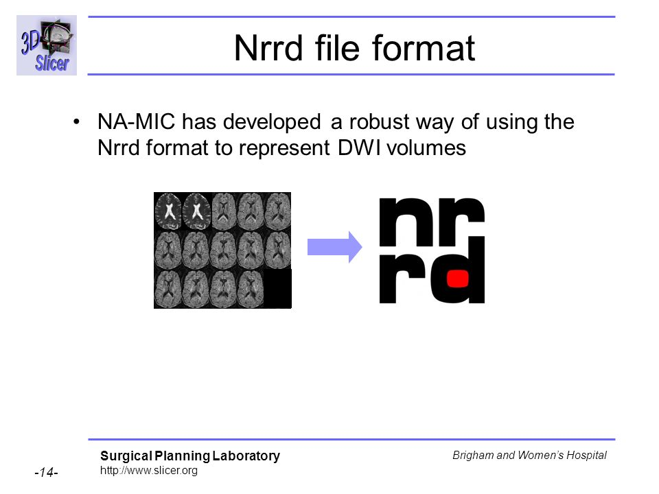 Surgical Planning Laboratory http://www.slicer.org -14- Brigham and Womens Hospital Nrrd file format NA-MIC has developed a robust way of using the Nrrd format to represent DWI volumes