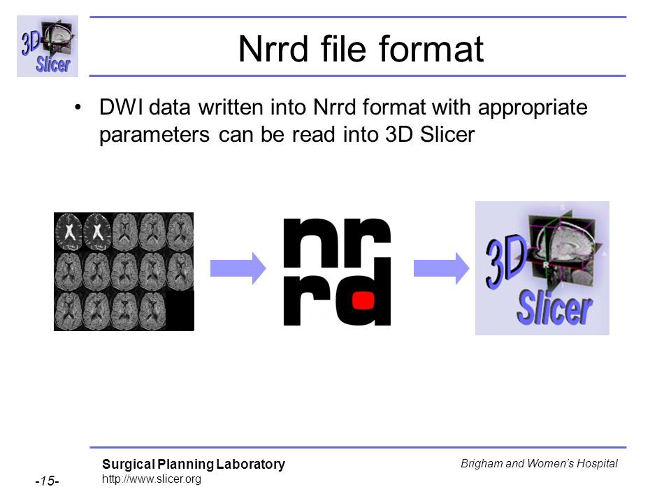 Surgical Planning Laboratory http://www.slicer.org -15- Brigham and Womens Hospital Nrrd file format DWI data written into Nrrd format with appropriate parameters can be read into 3D Slicer