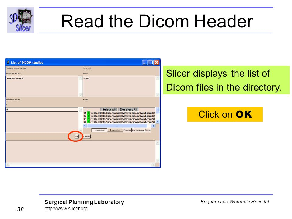 Surgical Planning Laboratory http://www.slicer.org -38- Brigham and Womens Hospital Slicer displays the list of Dicom files in the directory. Click on