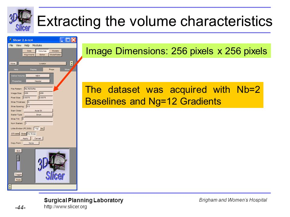 Surgical Planning Laboratory http://www.slicer.org -44- Brigham and Womens Hospital The dataset was acquired with Nb=2 Baselines and Ng=12 Gradients E