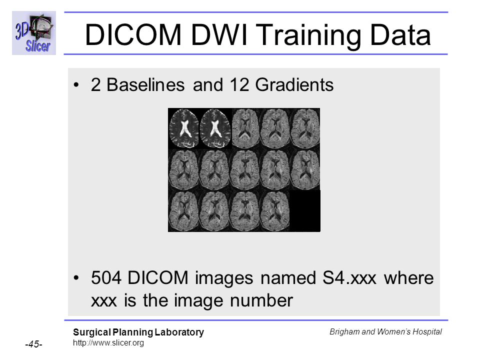 Surgical Planning Laboratory http://www.slicer.org -45- Brigham and Womens Hospital DICOM DWI Training Data 2 Baselines and 12 Gradients 504 DICOM images named S4.xxx where xxx is the image number
