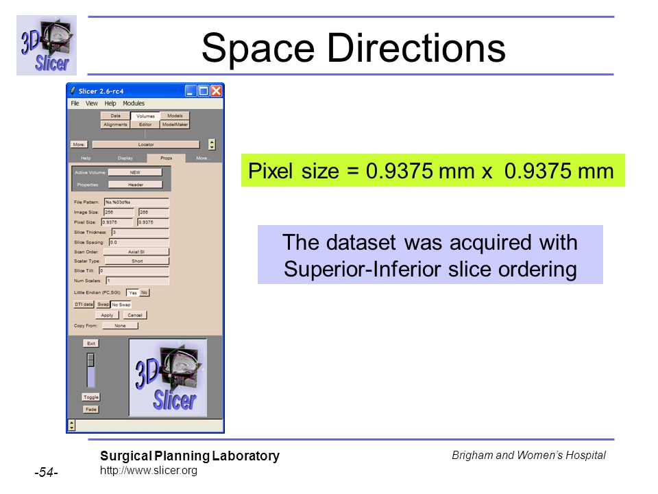 Surgical Planning Laboratory http://www.slicer.org -54- Brigham and Womens Hospital Space Directions Pixel size = 0.9375 mm x 0.9375 mm The dataset was acquired with Superior-Inferior slice ordering