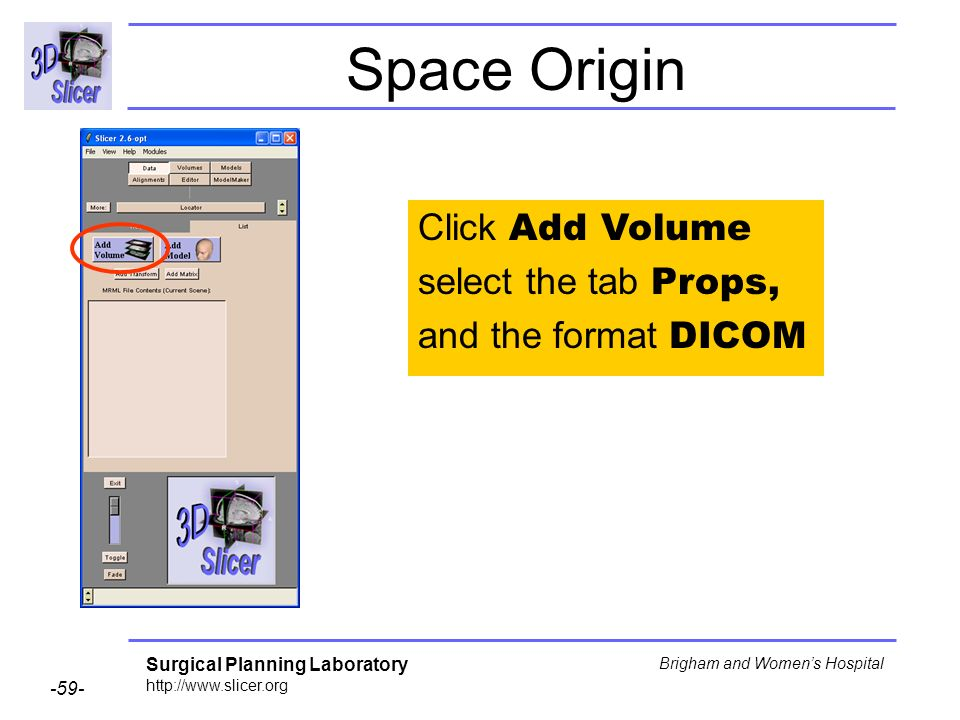 Surgical Planning Laboratory http://www.slicer.org -59- Brigham and Womens Hospital Space Origin Click Add Volume select the tab Props, and the format DICOM
