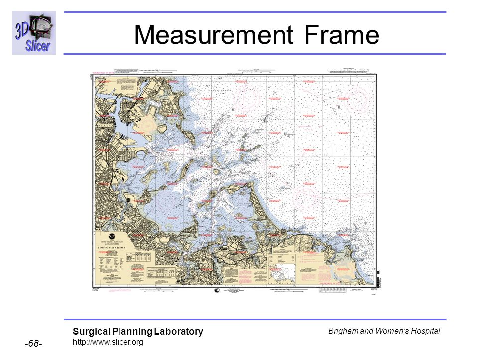 Surgical Planning Laboratory http://www.slicer.org -68- Brigham and Womens Hospital Measurement Frame