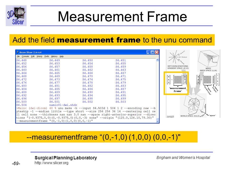 Surgical Planning Laboratory http://www.slicer.org -69- Brigham and Womens Hospital Measurement Frame --measurementframe (0,-1,0) (1,0,0) (0,0,-1) Add the field measurement frame to the unu command