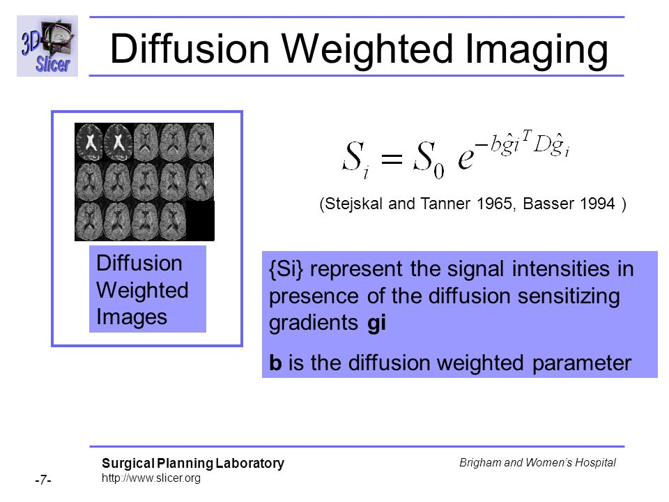 Surgical Planning Laboratory http://www.slicer.org -7- Brigham and Womens Hospital Diffusion Weighted Imaging (Stejskal and Tanner 1965, Basser 1994 ) {Si} represent the signal intensities in presence of the diffusion sensitizing gradients gi b is the diffusion weighted parameter Diffusion Weighted Images