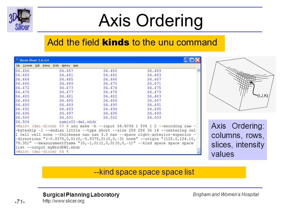 Surgical Planning Laboratory http://www.slicer.org -71- Brigham and Womens Hospital Axis Ordering --kind space space space list Add the field kinds to the unu command Axis Ordering: columns, rows, slices, intensity values