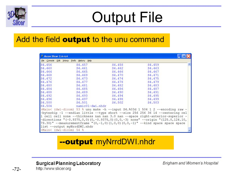 Surgical Planning Laboratory http://www.slicer.org -72- Brigham and Womens Hospital Output File Add the field output to the unu command --output myNrr