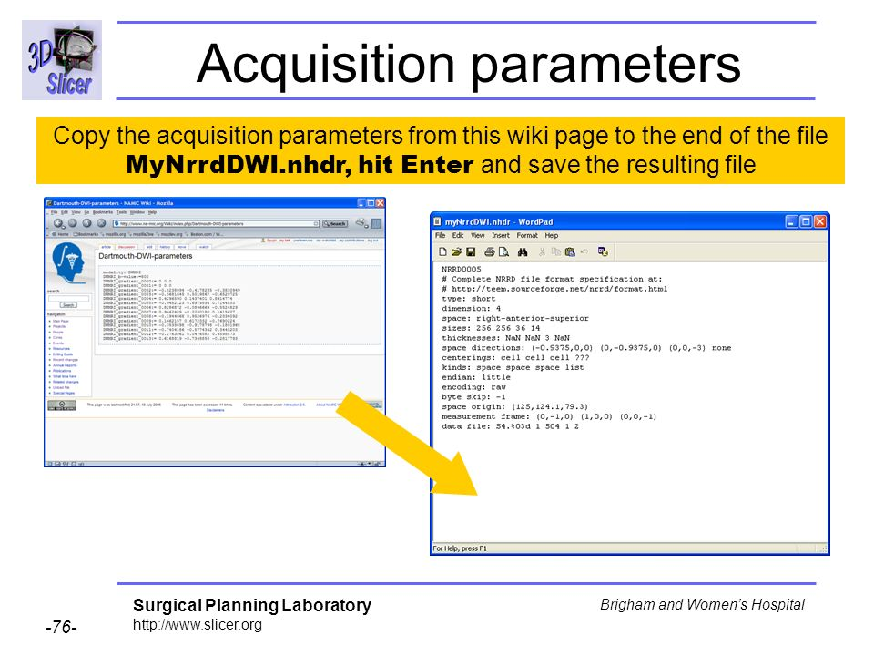 Surgical Planning Laboratory http://www.slicer.org -76- Brigham and Womens Hospital Acquisition parameters Copy the acquisition parameters from this w