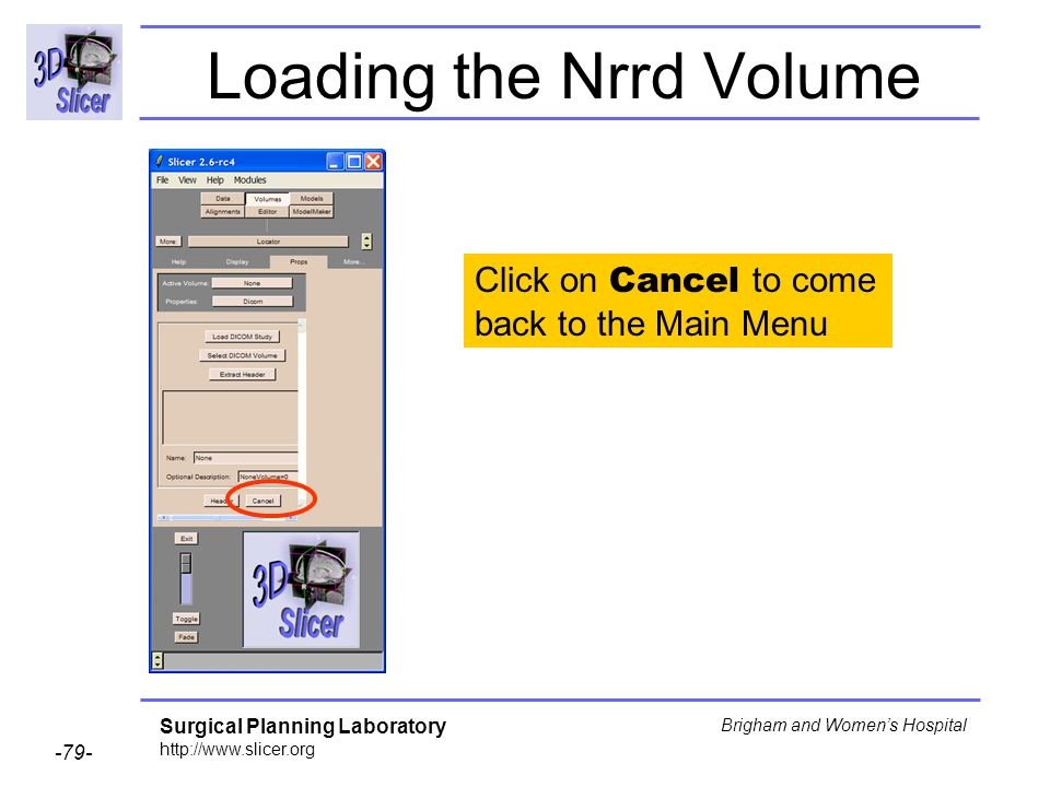 Surgical Planning Laboratory http://www.slicer.org -79- Brigham and Womens Hospital Loading the Nrrd Volume Click on Cancel to come back to the Main M