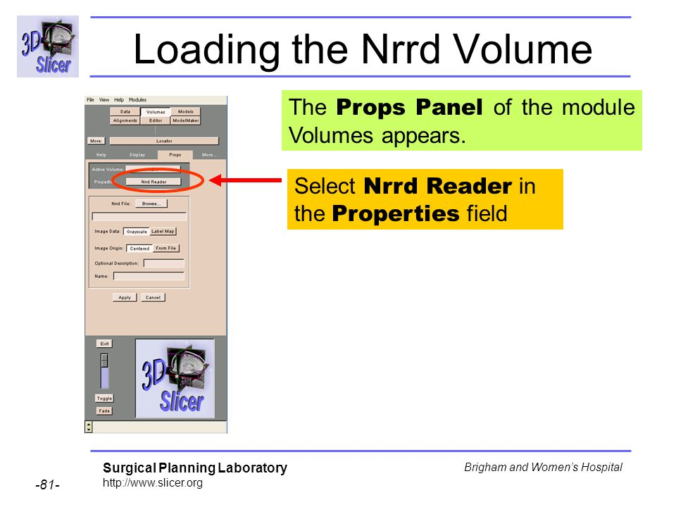 Surgical Planning Laboratory http://www.slicer.org -81- Brigham and Womens Hospital Loading the Nrrd Volume Select Nrrd Reader in the Properties field