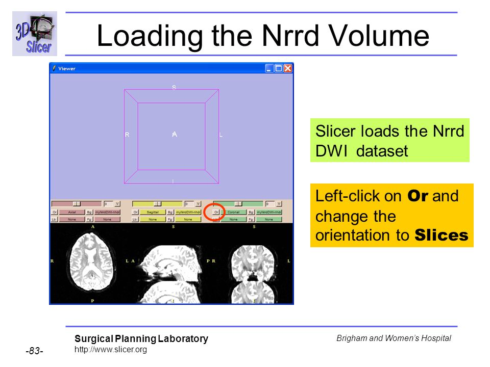 Surgical Planning Laboratory http://www.slicer.org -83- Brigham and Womens Hospital Loading the Nrrd Volume Slicer loads the Nrrd DWI dataset Left-click on Or and change the orientation to Slices