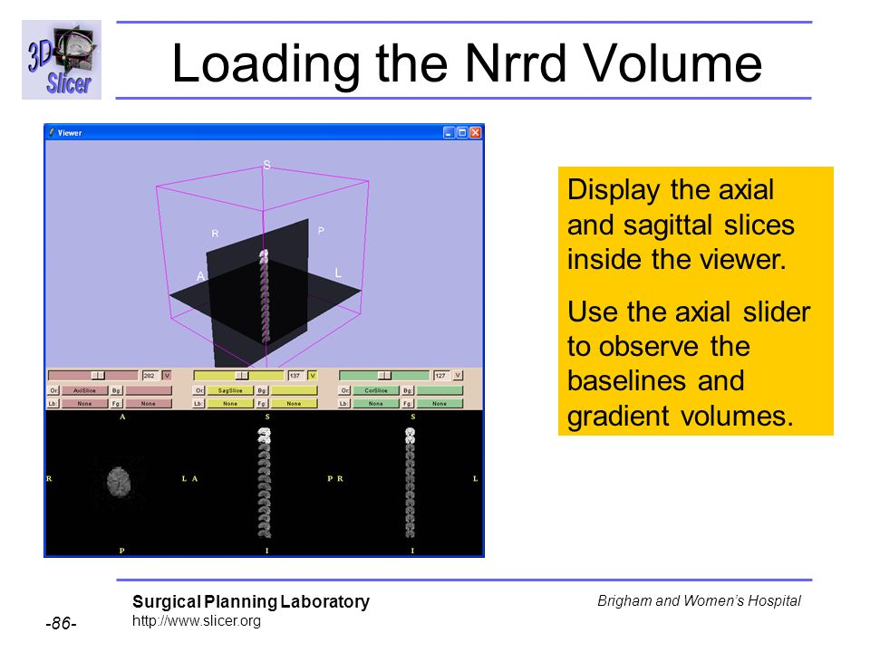 Surgical Planning Laboratory http://www.slicer.org -86- Brigham and Womens Hospital Loading the Nrrd Volume Display the axial and sagittal slices inside the viewer.