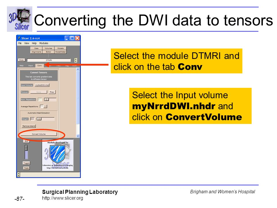 Surgical Planning Laboratory http://www.slicer.org -87- Brigham and Womens Hospital Converting the DWI data to tensors Select the module DTMRI and click on the tab Conv Select the Input volume myNrrdDWI.nhdr and click on ConvertVolume