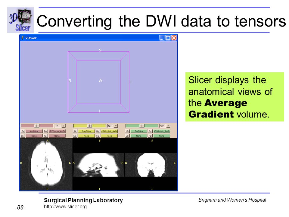 Surgical Planning Laboratory http://www.slicer.org -88- Brigham and Womens Hospital Converting the DWI data to tensors Slicer displays the anatomical views of the Average Gradient volume.
