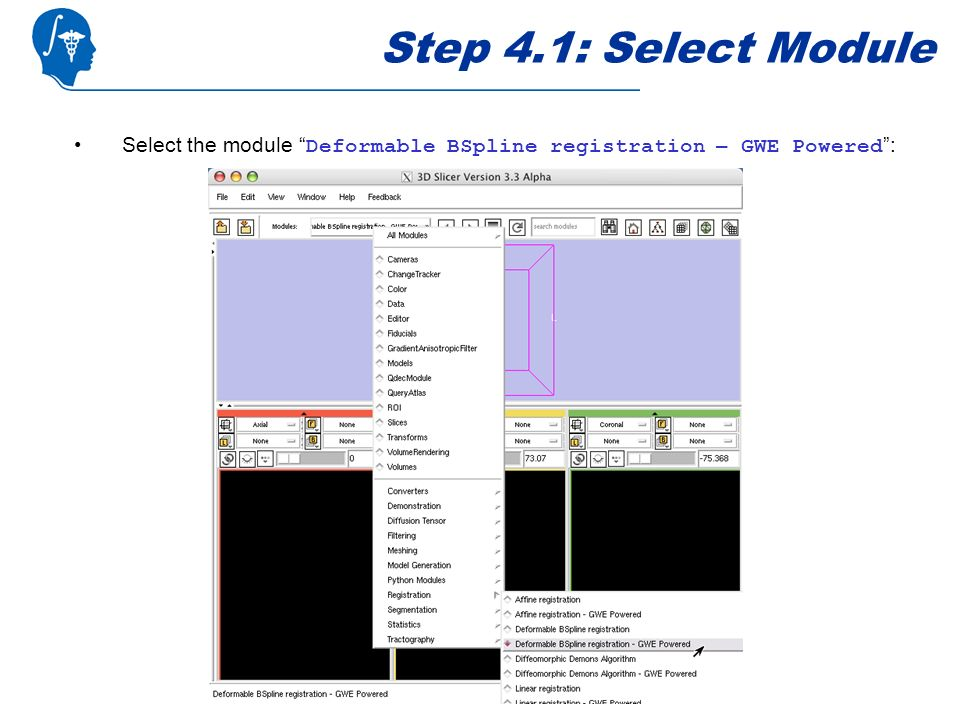Step 4.1: Select Module Select the module Deformable BSpline registration – GWE Powered :