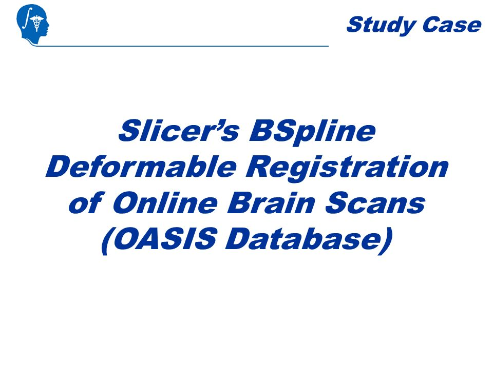 Study Case Slicers BSpline Deformable Registration of Online Brain Scans (OASIS Database)