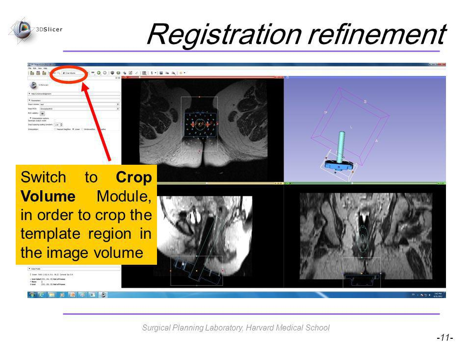 -11- Registration refinement Switch to Crop Volume Module, in order to crop the template region in the image volume Surgical Planning Laboratory, Harvard Medical School
