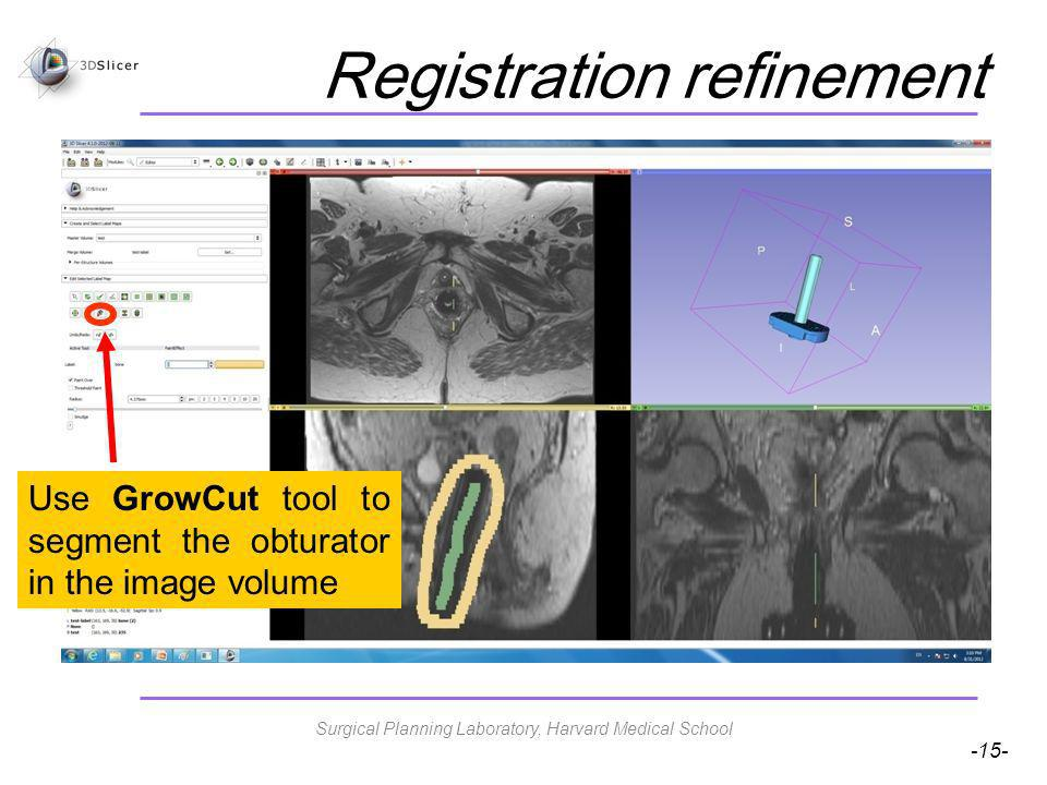 -15- Registration refinement Use GrowCut tool to segment the obturator in the image volume Surgical Planning Laboratory, Harvard Medical School