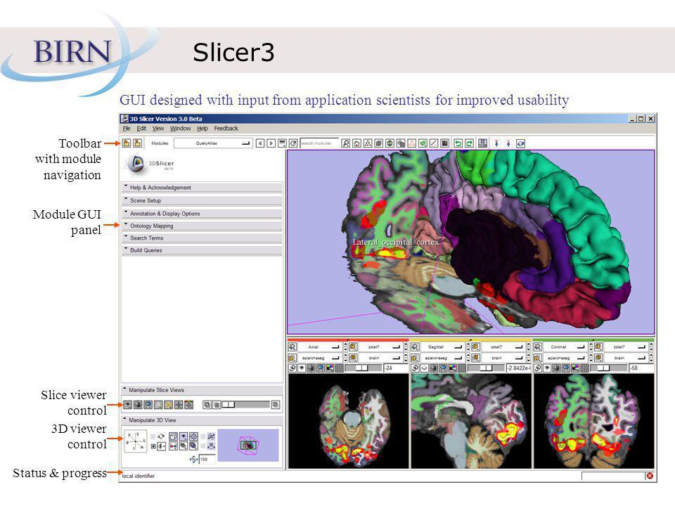 Slicer3 GUI designed with input from application scientists for improved usability Toolbar with module navigation Module GUI panel Slice viewer control 3D viewer control Status & progress