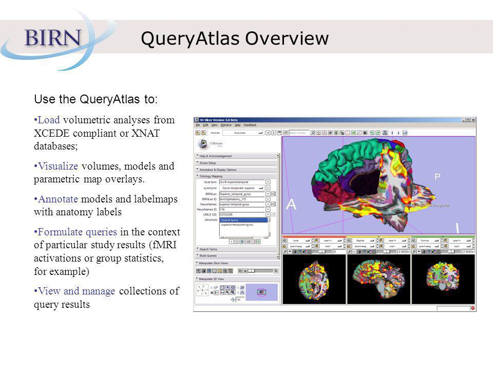 QueryAtlas Overview Use the QueryAtlas to: Load volumetric analyses from XCEDE compliant or XNAT databases; Visualize volumes, models and parametric map overlays.