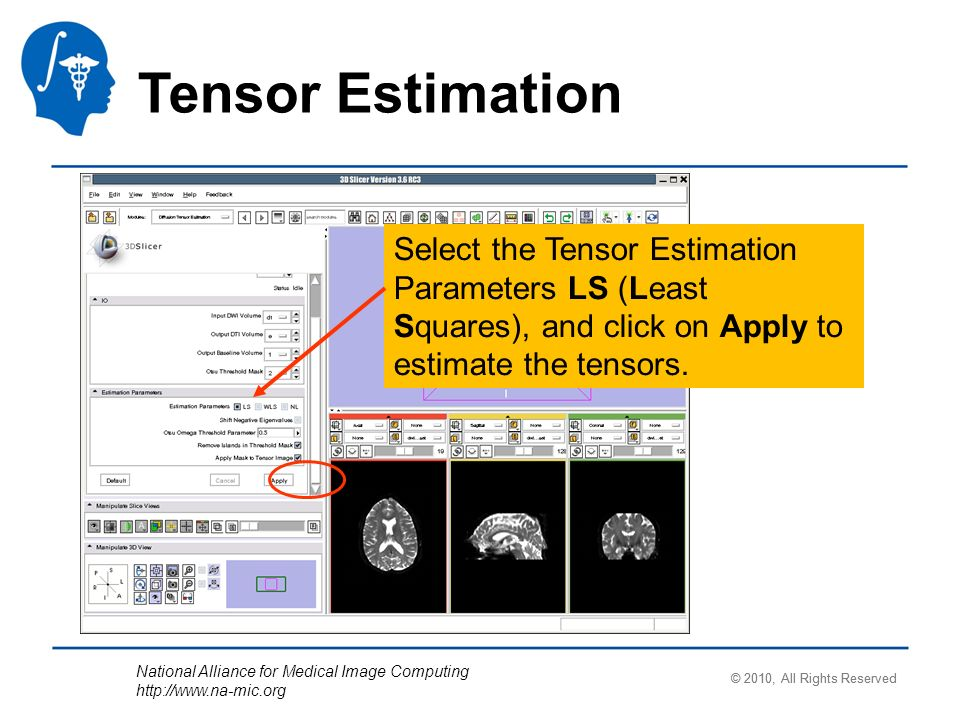 National Alliance for Medical Image Computing   Tensor Estimation Select the Tensor Estimation Parameters LS (Least Squares), and click on Apply to estimate the tensors.