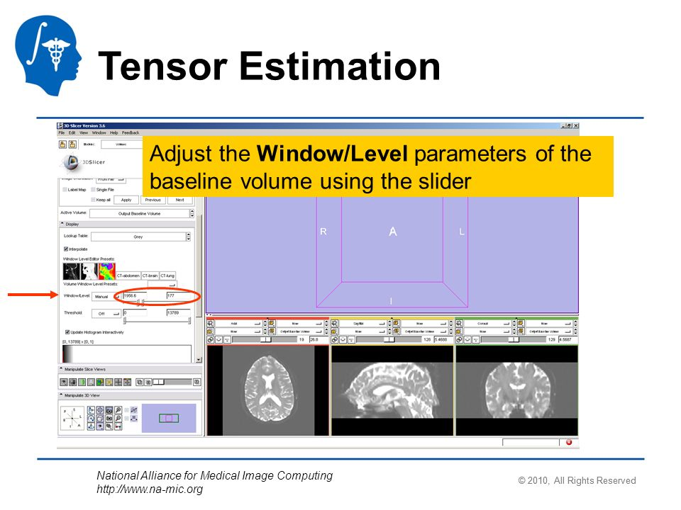 National Alliance for Medical Image Computing   Tensor Estimation Adjust the Window/Level parameters of the baseline volume using the slider © 2010, All Rights Reserved