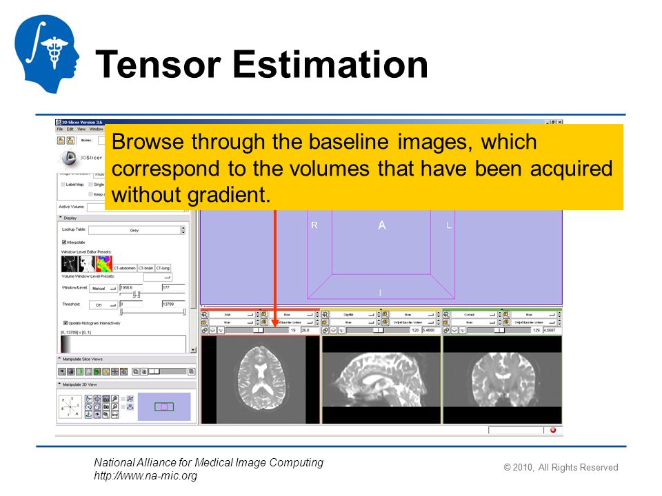 National Alliance for Medical Image Computing   Tensor Estimation Browse through the baseline images, which correspond to the volumes that have been acquired without gradient.