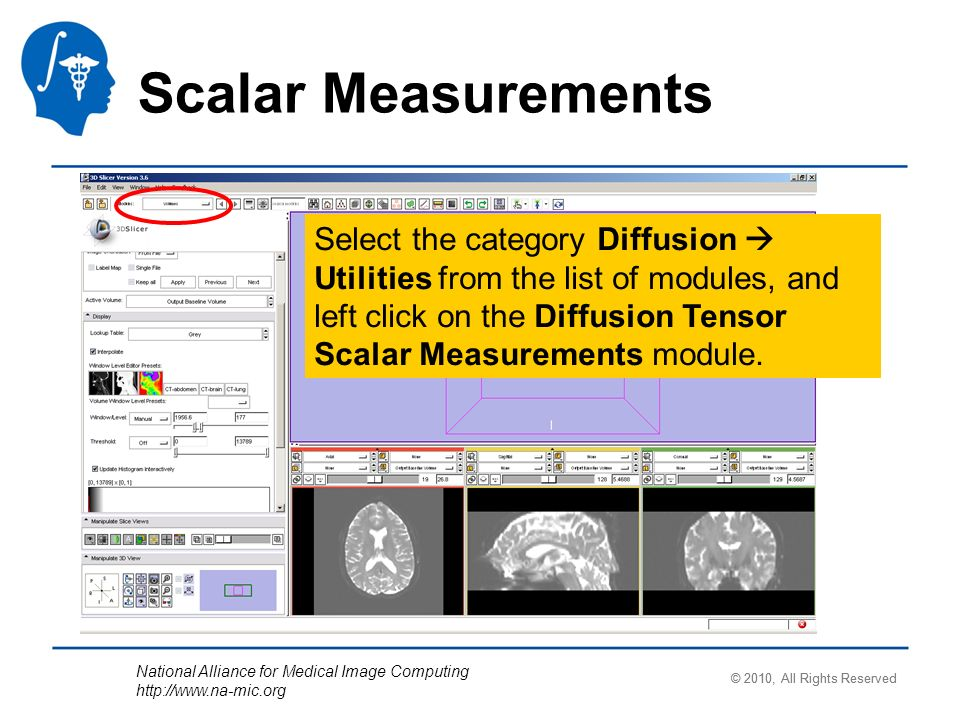 National Alliance for Medical Image Computing   Select the category Diffusion Utilities from the list of modules, and left click on the Diffusion Tensor Scalar Measurements module.
