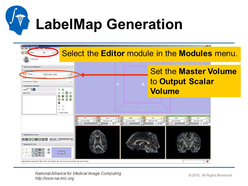 National Alliance for Medical Image Computing   Select the Editor module in the Modules menu.