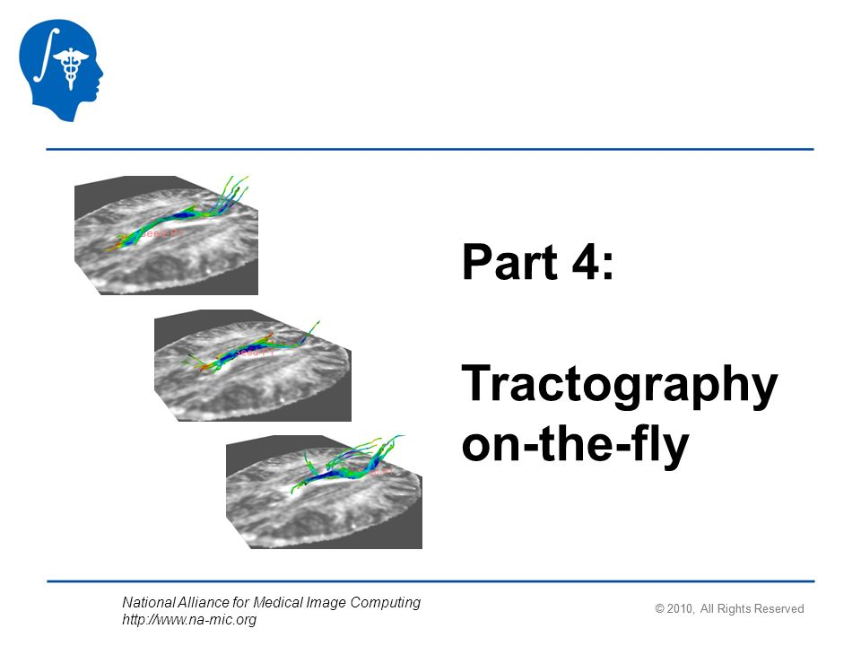 National Alliance for Medical Image Computing   Part 4: Tractography on-the-fly © 2010, All Rights Reserved