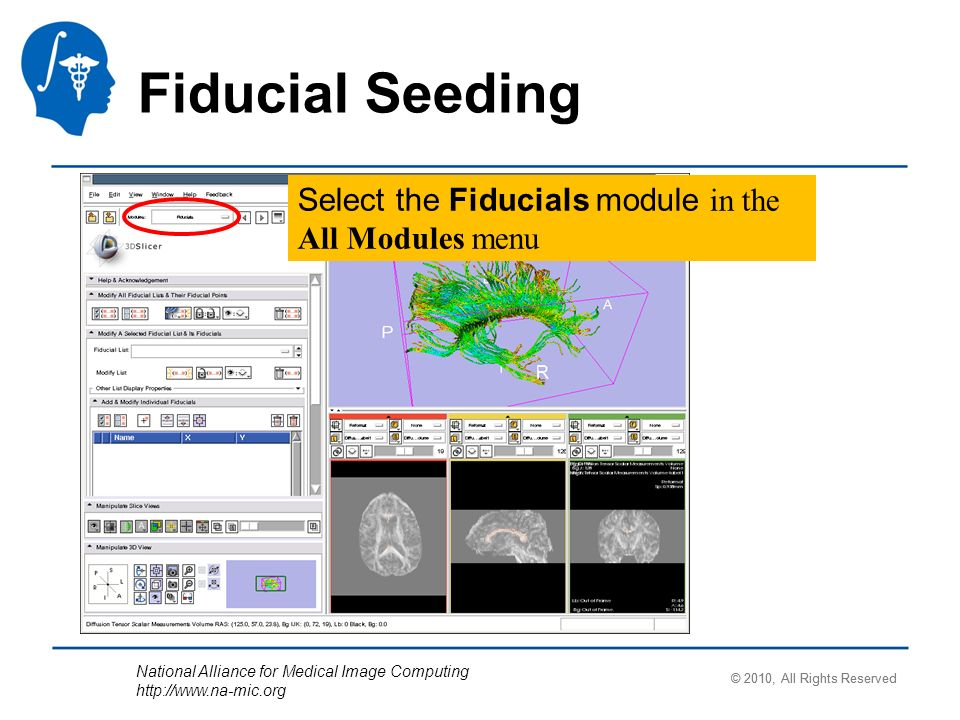 National Alliance for Medical Image Computing   Select the Fiducials module in the All Modules menu © 2010, All Rights Reserved Fiducial Seeding