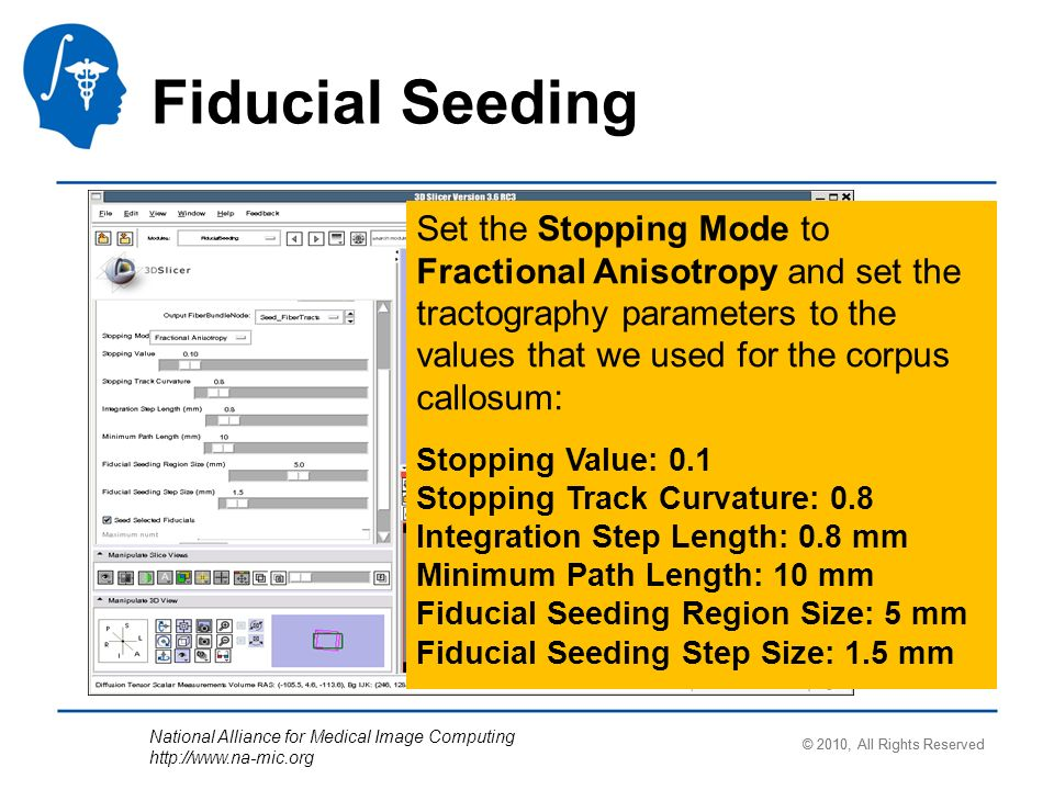 National Alliance for Medical Image Computing   Fiducial Seeding Set the Stopping Mode to Fractional Anisotropy and set the tractography parameters to the values that we used for the corpus callosum: Stopping Value: 0.1 Stopping Track Curvature: 0.8 Integration Step Length: 0.8 mm Minimum Path Length: 10 mm Fiducial Seeding Region Size: 5 mm Fiducial Seeding Step Size: 1.5 mm © 2010, All Rights Reserved