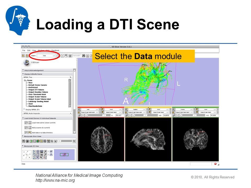 National Alliance for Medical Image Computing   Loading a DTI Scene Select the Data module © 2010, All Rights Reserved