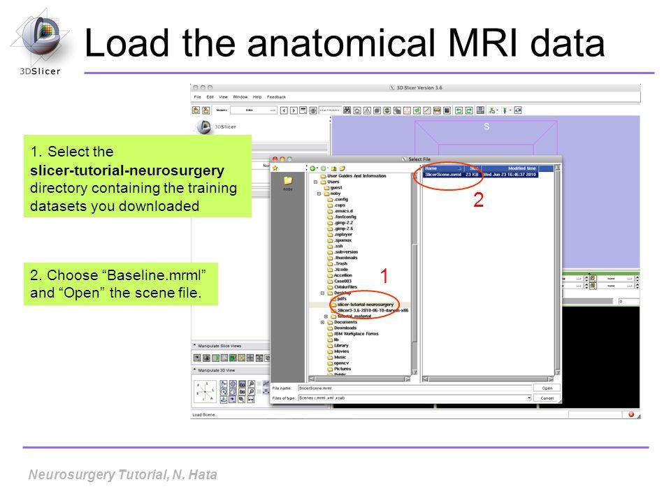 Load the anatomical MRI data 1.