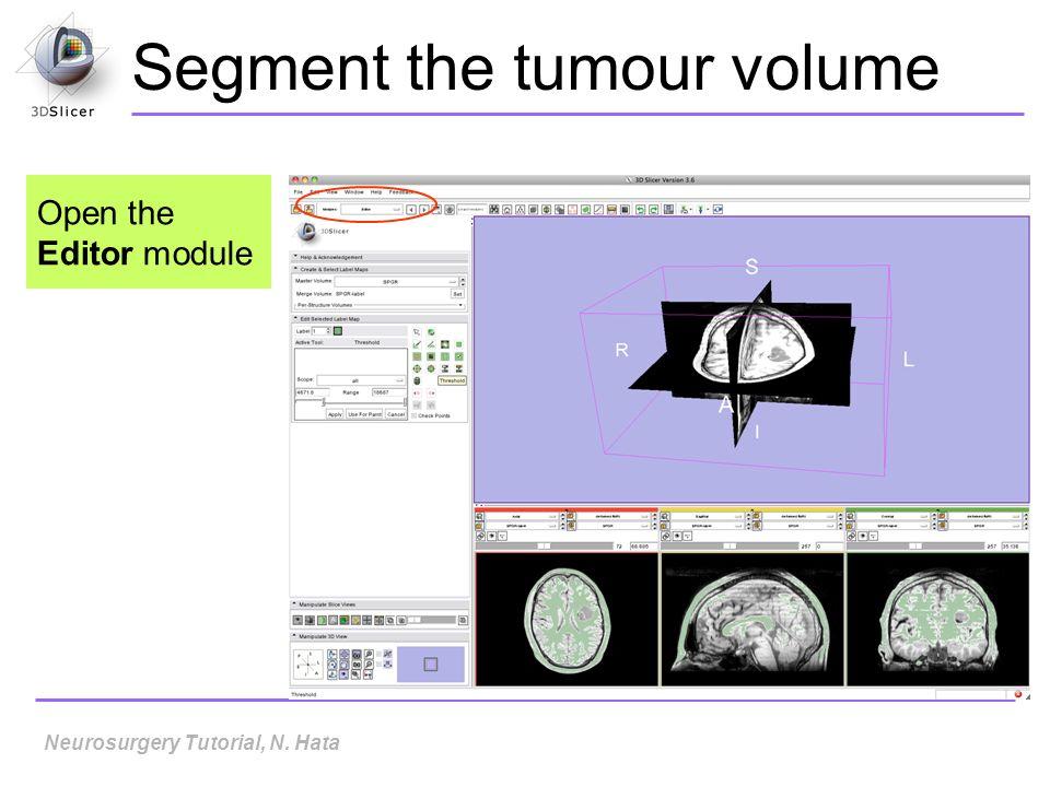 Segment the tumour volume Open the Editor module Neurosurgery Tutorial, N. Hata