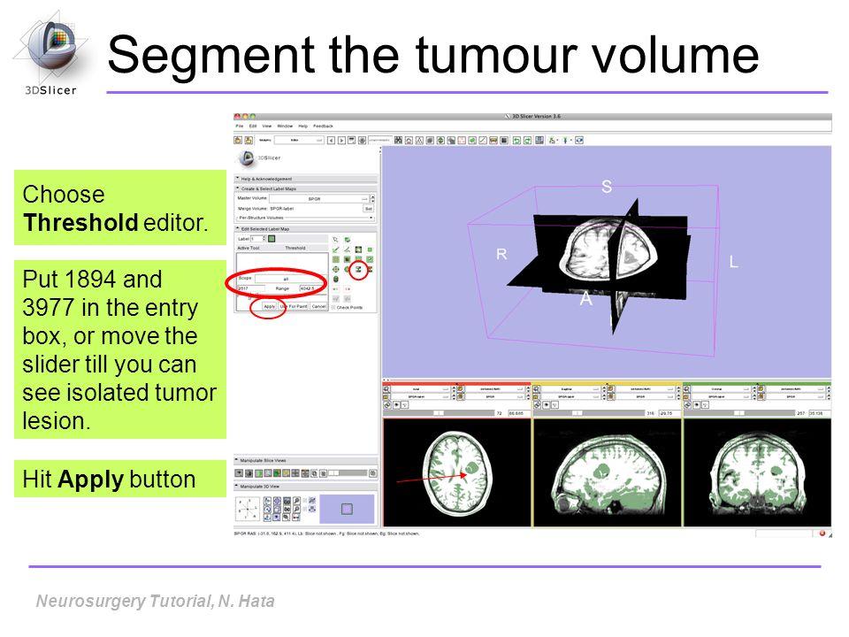 Segment the tumour volume Choose Threshold editor.