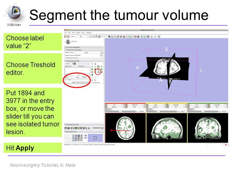 Segment the tumour volume Choose Treshold editor.