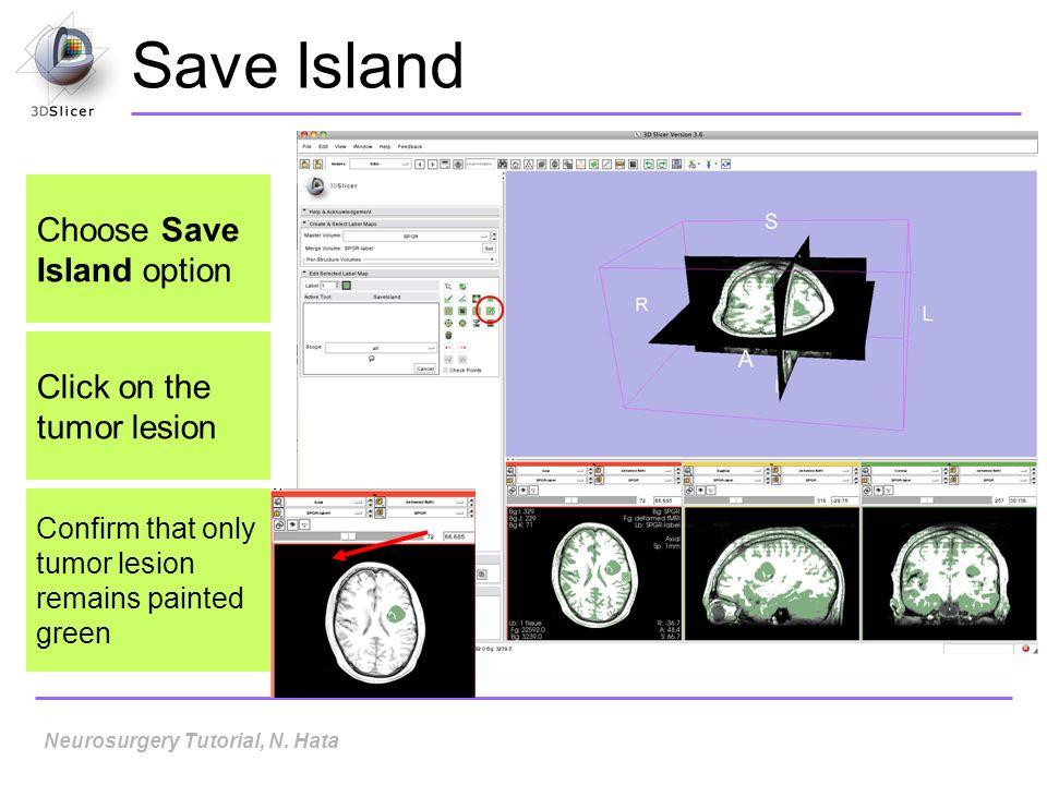 Save Island Neurosurgery Tutorial, N.