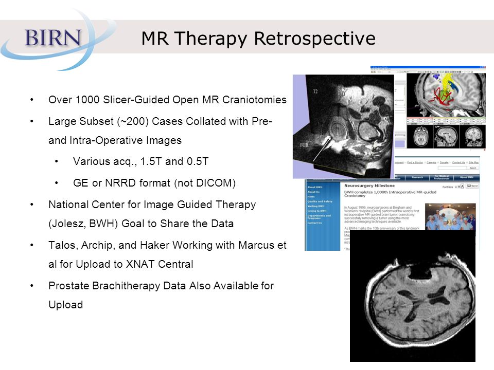 MR Therapy Retrospective Over 1000 Slicer-Guided Open MR Craniotomies Large Subset (~200) Cases Collated with Pre- and Intra-Operative Images Various acq., 1.5T and 0.5T GE or NRRD format (not DICOM) National Center for Image Guided Therapy (Jolesz, BWH) Goal to Share the Data Talos, Archip, and Haker Working with Marcus et al for Upload to XNAT Central Prostate Brachitherapy Data Also Available for Upload