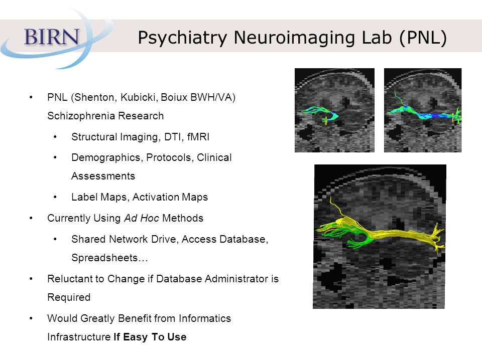 Psychiatry Neuroimaging Lab (PNL) PNL (Shenton, Kubicki, Boiux BWH/VA) Schizophrenia Research Structural Imaging, DTI, fMRI Demographics, Protocols, Clinical Assessments Label Maps, Activation Maps Currently Using Ad Hoc Methods Shared Network Drive, Access Database, Spreadsheets… Reluctant to Change if Database Administrator is Required Would Greatly Benefit from Informatics Infrastructure If Easy To Use