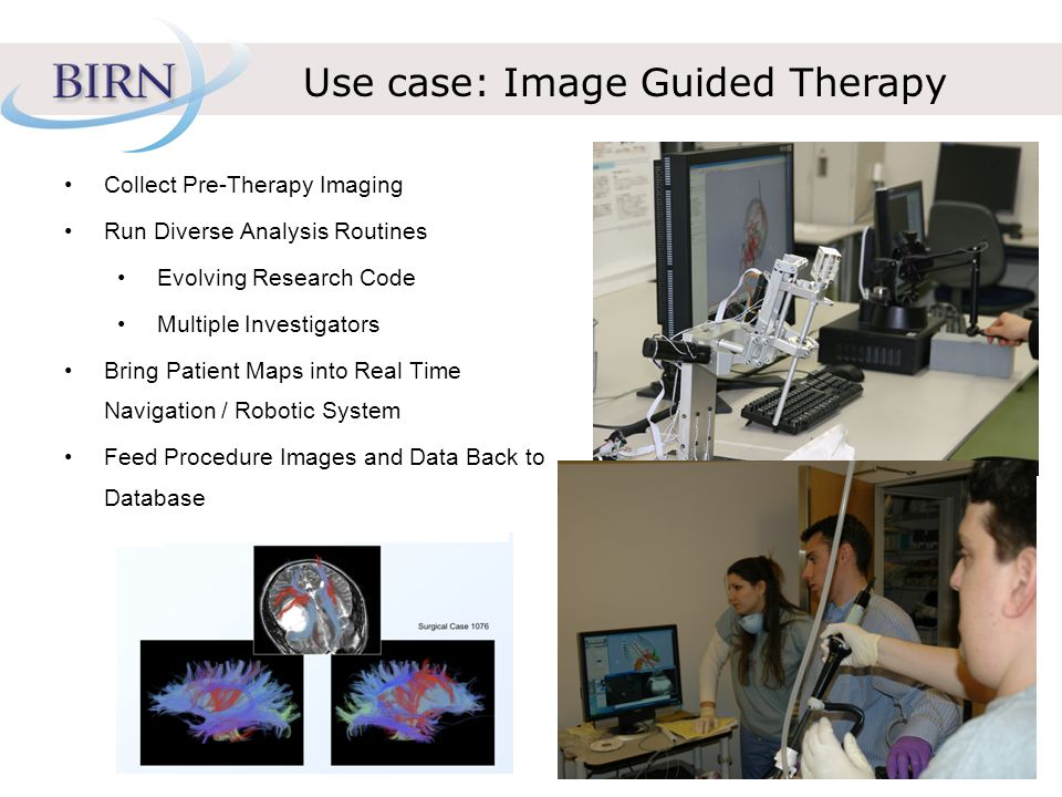 Use case: Image Guided Therapy Collect Pre-Therapy Imaging Run Diverse Analysis Routines Evolving Research Code Multiple Investigators Bring Patient Maps into Real Time Navigation / Robotic System Feed Procedure Images and Data Back to Database