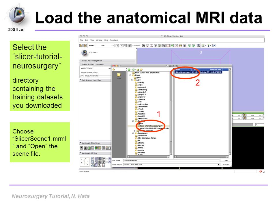 Load the anatomical MRI data Select the slicer-tutorial- neurosurgery directory containing the training datasets you downloaded Choose SlicerScene1.mr