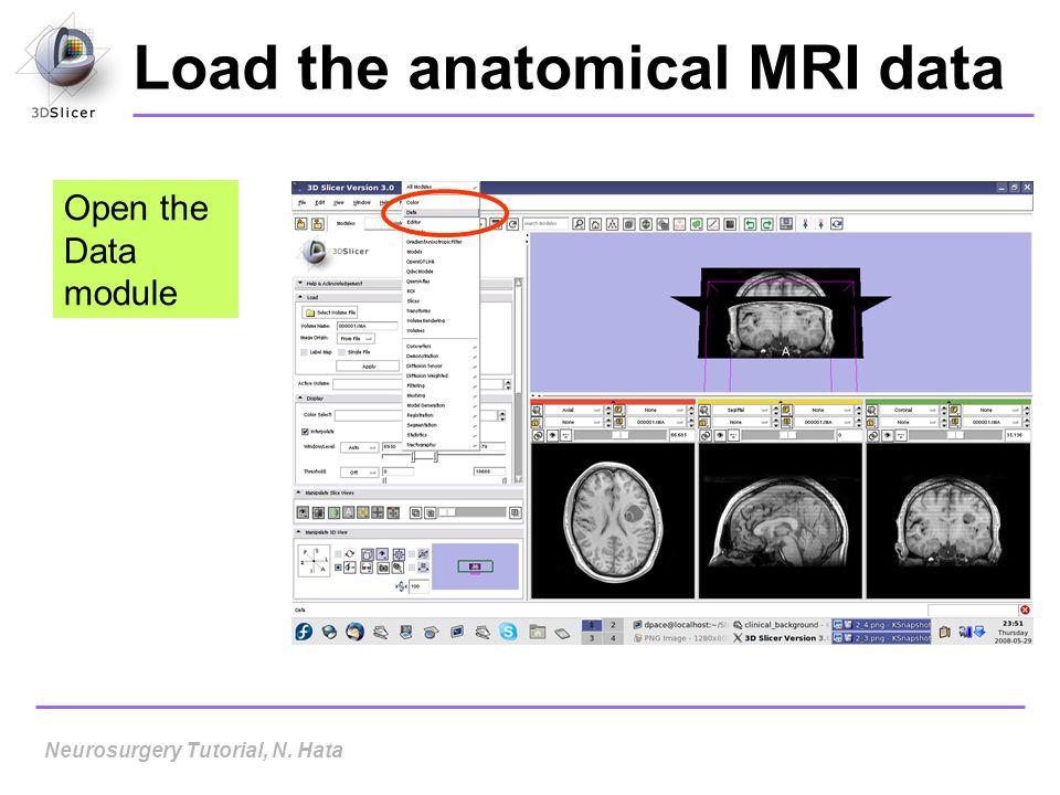 Load the anatomical MRI data Open the Data module Neurosurgery Tutorial, N. Hata